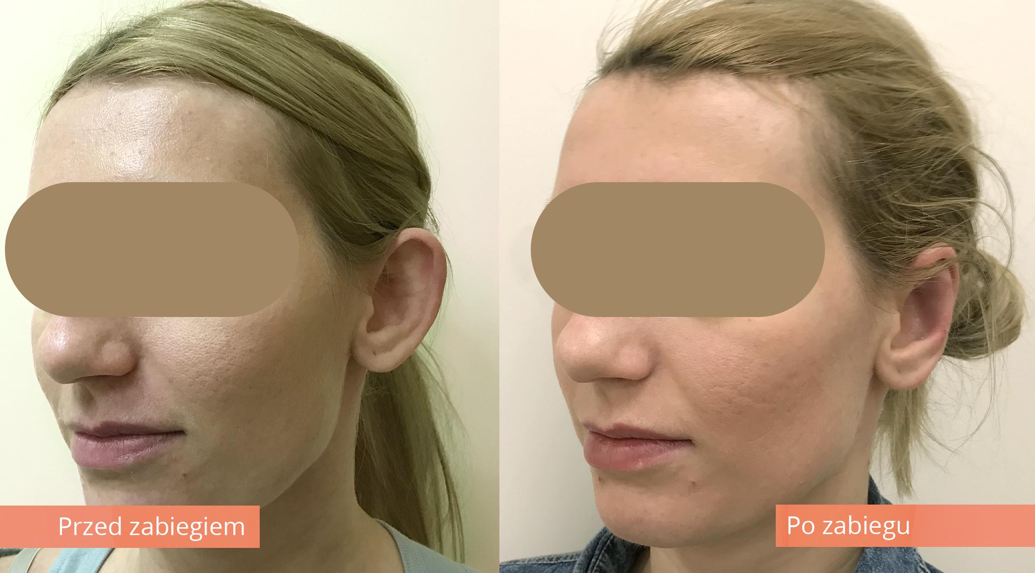 korekta odstajacych uszu