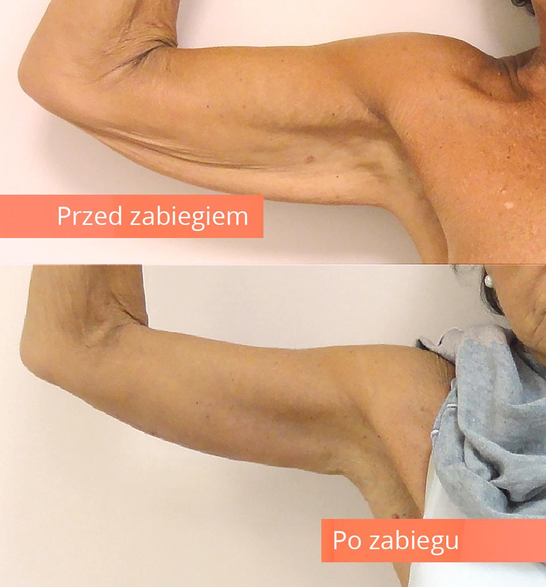 lifting-ramion
