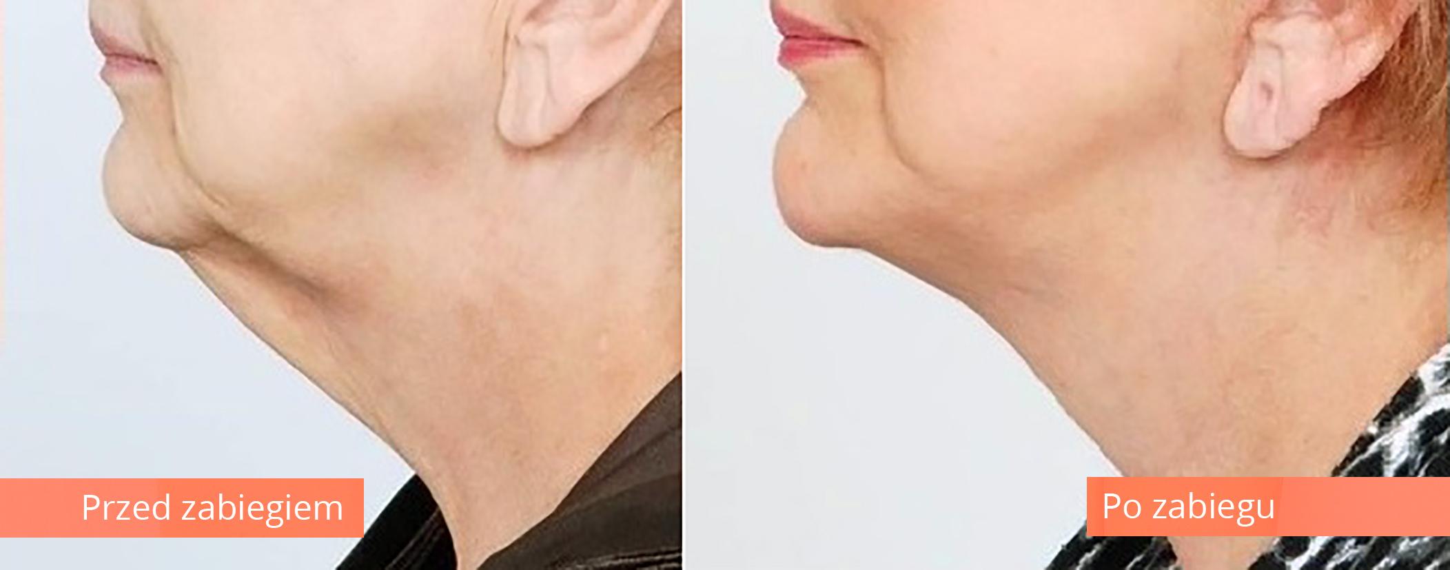 Lifting twarzy, czoła lub szyi