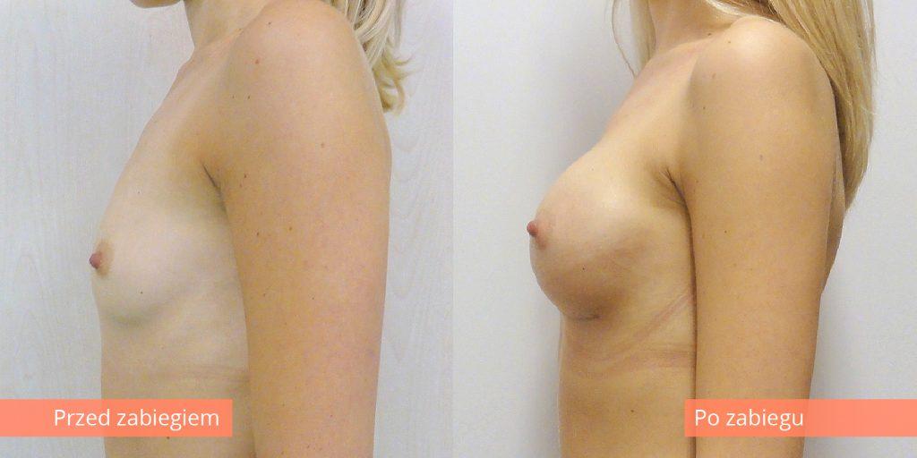 Powiększenie piersi implantami