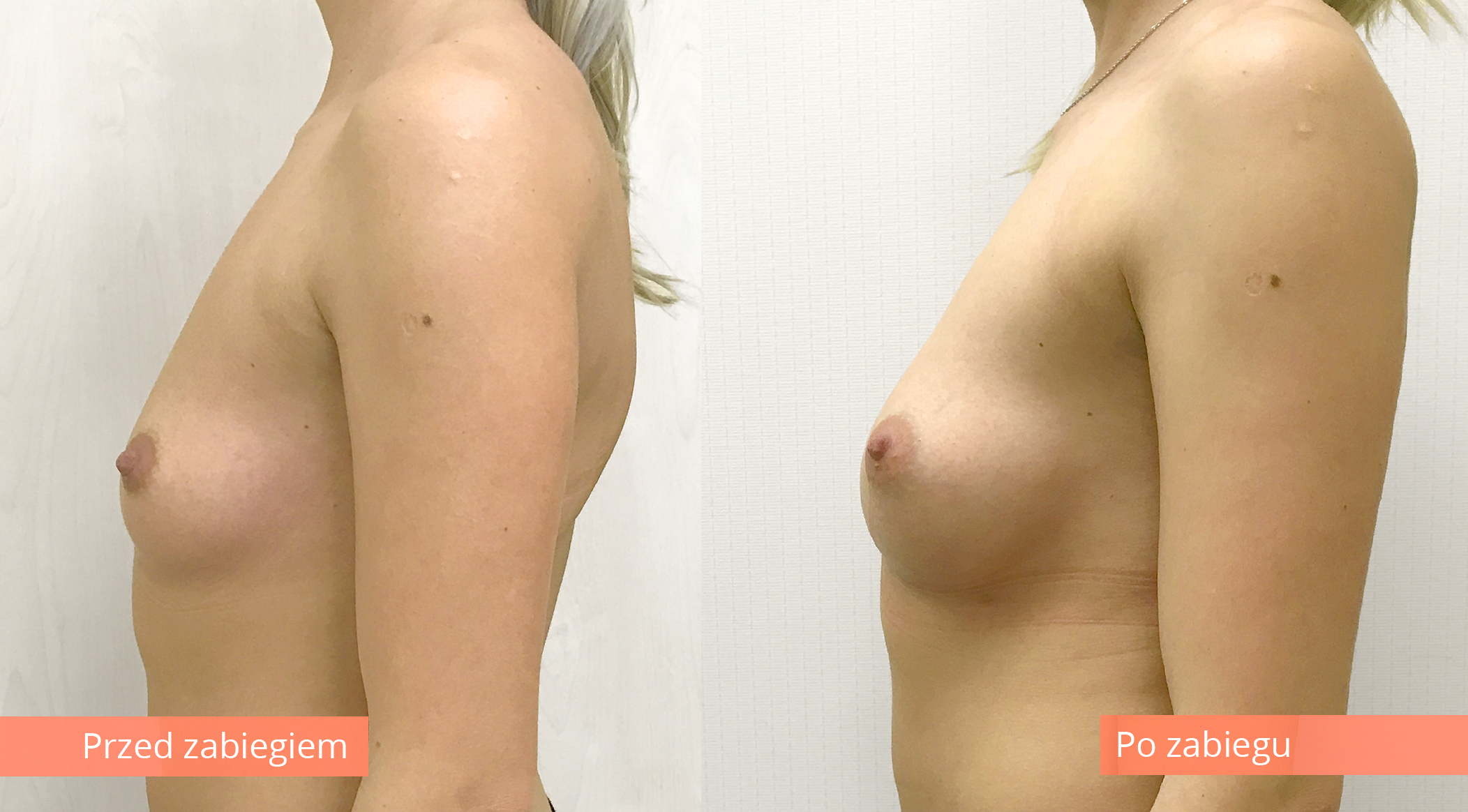 powiekszenie-piersi-wlasnym-tluszczem