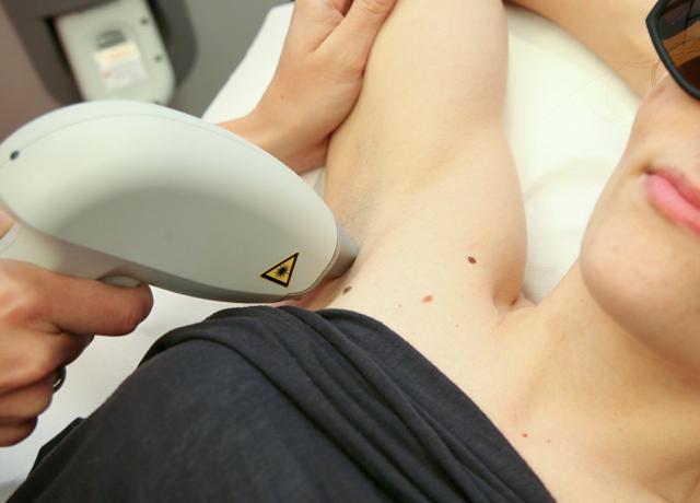 depilacja -laserowa